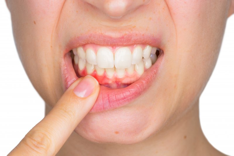 A woman with mild gingivitis.